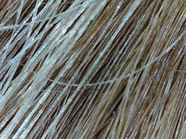 Маска для сухих волос эффективное лечение и профилактика