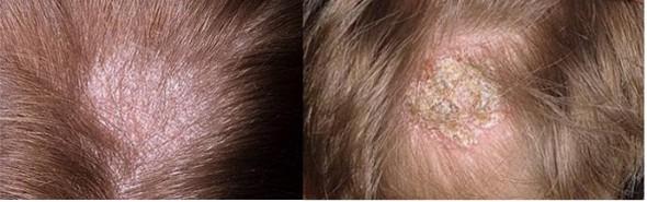 Что скажет врач, если сильно чешется голова и выпадают волосы? Причины и лечение неприятного симптома: чешется голова и выпадают волосы - Автор Екатерина Данилова