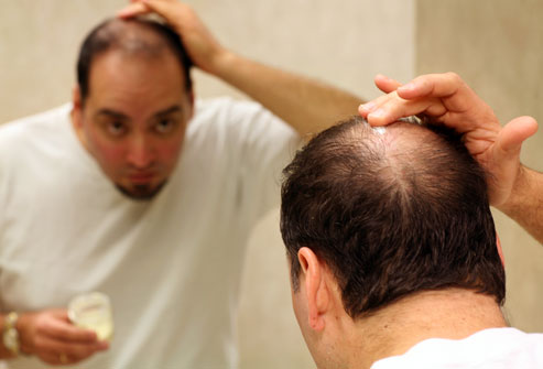Шампунь против выпадения волос для мужчин: какой выбрать мужской шампунь от выпадения волос