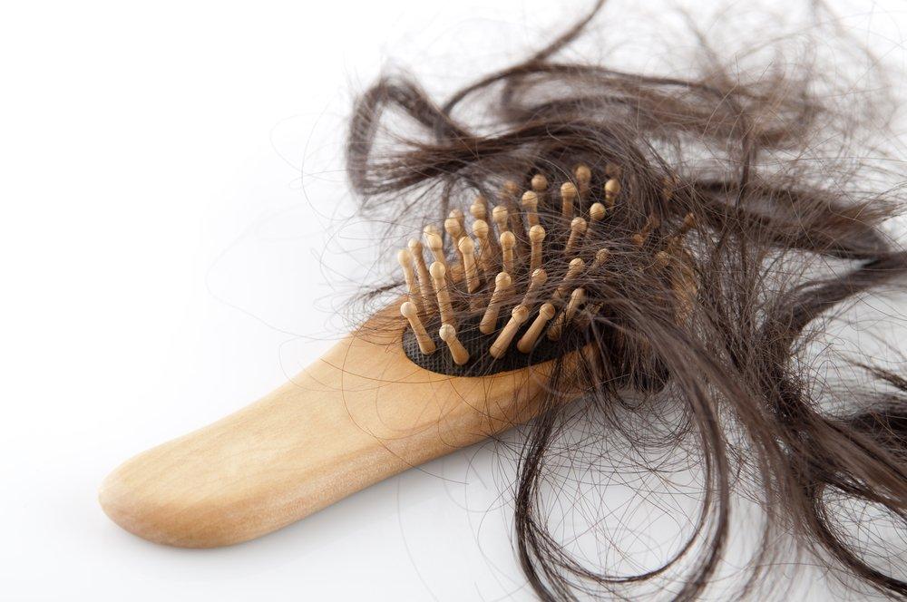 Облысение волос у женщин лечение